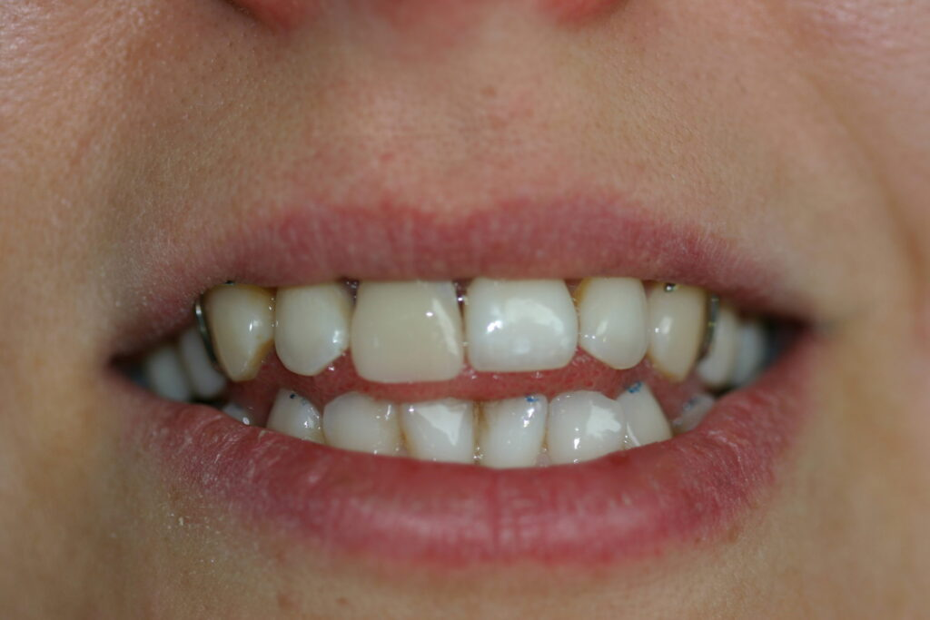 Placement of Teeth