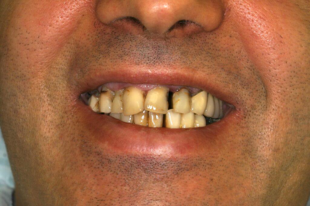 Periodontal Implant Surgery