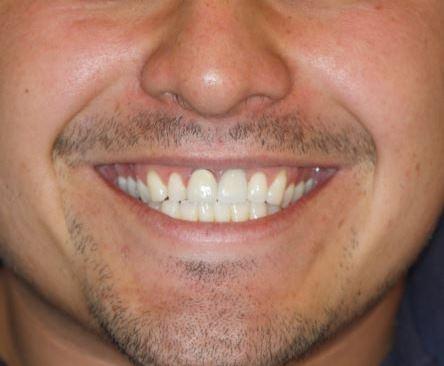 Surgical Dental Implants