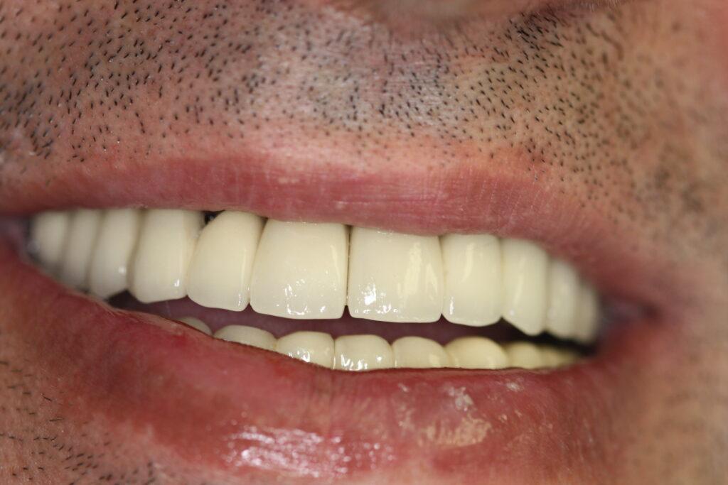 Dental Implants Newport Beach