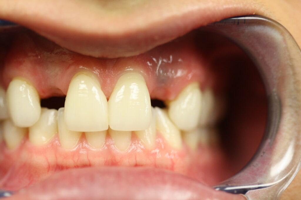 Dental Implant Emergency