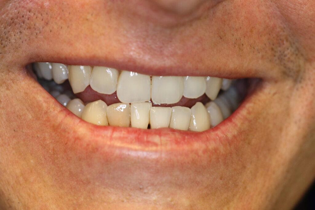 Cosmetic Teeth Implants