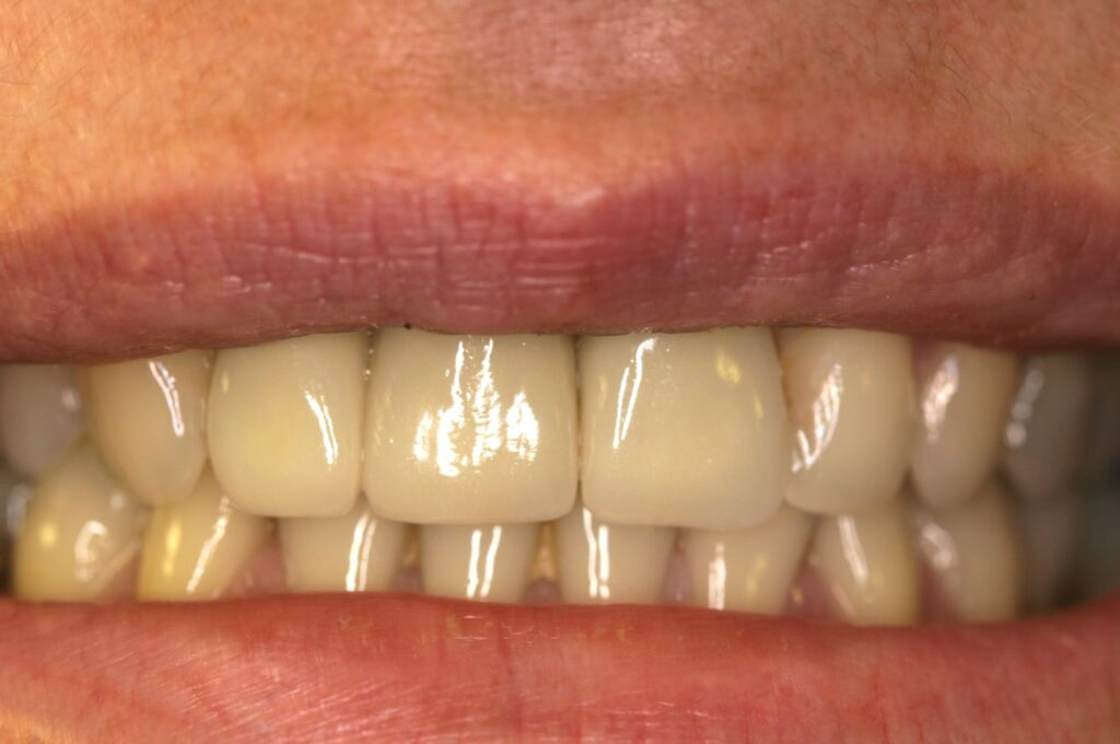 General Cosmetic Dentistry