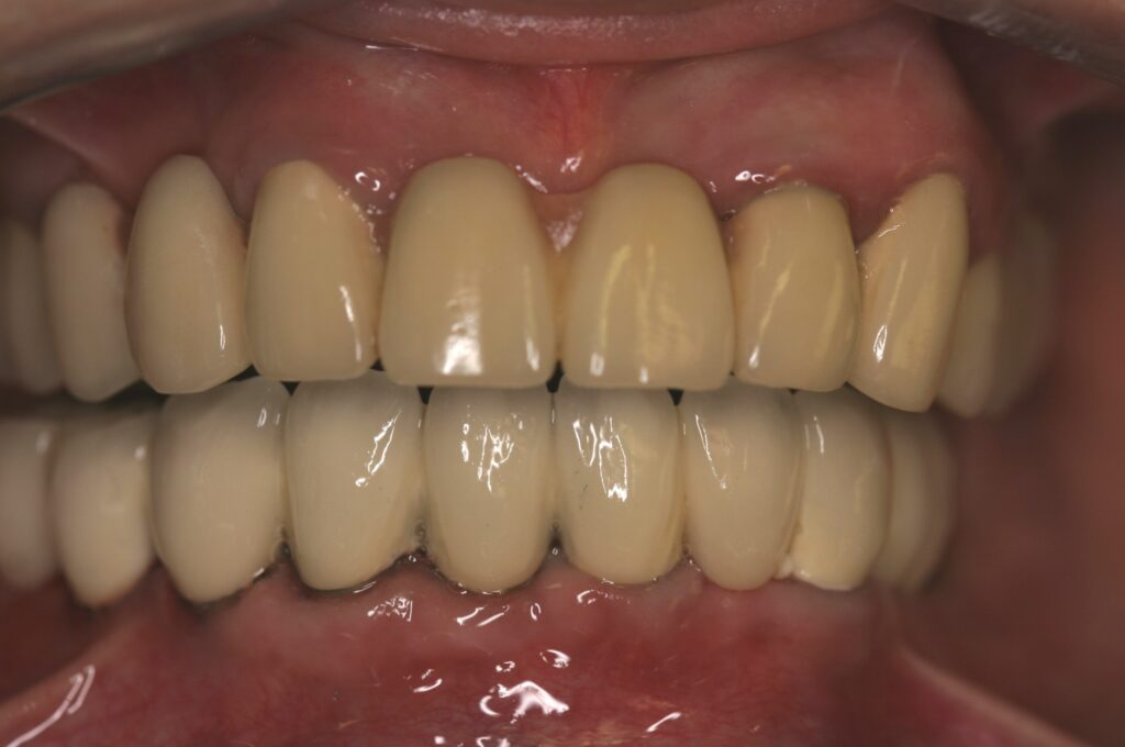 Cosmetic and Implant Dental Center