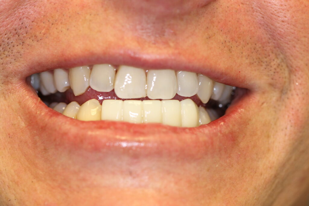 Orange County Dental Implants